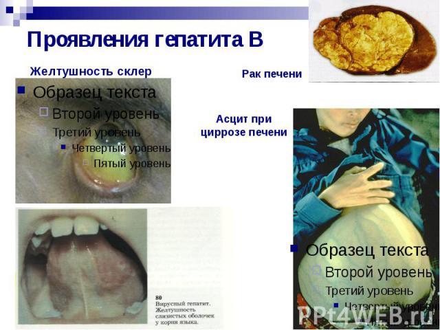 Проявления гепатита В