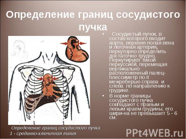 Сосудистый пучок, в состав которого входит аорта, верхняя полая вена и легочная артерия, перкуторно определить достаточно трудно. Перкутируют тихой перкуссией, перемещая вертикально расположенный палец-плессиметр по II межреберью справа и слева по н…