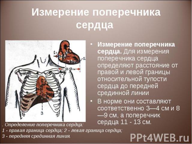Измерение поперечника сердца. Для измерения поперечника сердца определяют расстояние от правой и левой границы относительной тупости сердца до передней срединной линии Измерение поперечника сердца. Для измерения поперечника сердца определяют расстоя…
