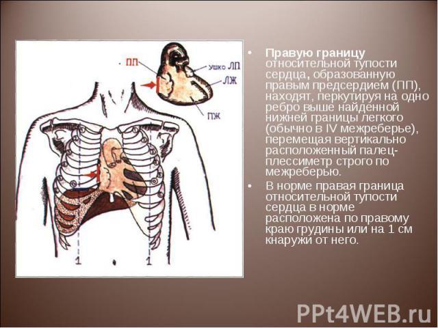 Правую границу относительной тупости сердца, образованную правым предсердием (ПП), находят, перкутируя на одно ребро выше найденной нижней границы легкого (обычно в IV межреберье), перемещая вертикально расположенный палец-плессиметр строго по межре…