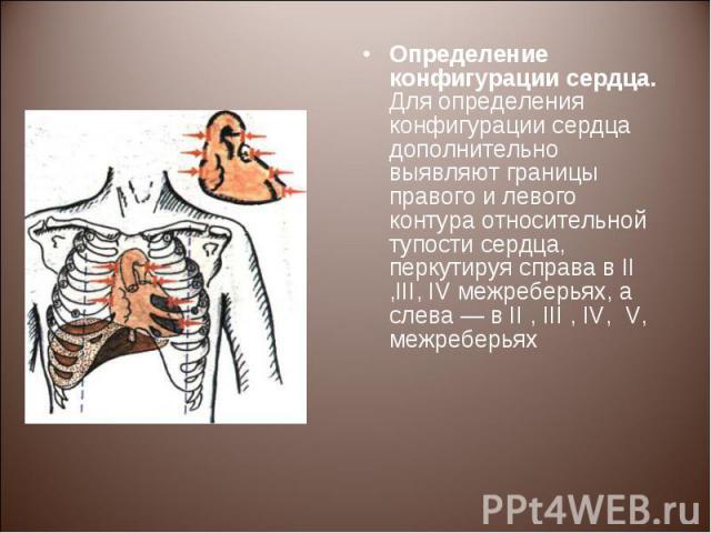 Определение конфигурации сердца. Для определения конфигурации сердца дополнительно выявляют границы правого и левого контура относительной тупости сердца, перкутируя справа в II ,III, IV межреберьях, а слева — в II , III , IV, V, межреберьях Определ…