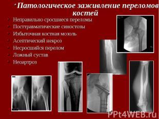Неправильно сросшиеся переломы Неправильно сросшиеся переломы Посттравматические