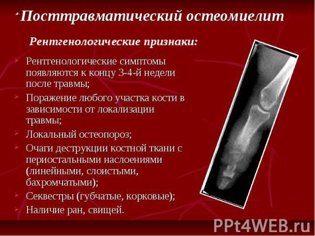 Рентгенологические симптомы появляются к концу 3-4-й недели после травмы; Рентгенологические симптомы появляются к концу 3-4-й недели после травмы; Поражение любого участка кости в зависимости от локализации травмы; Локальный остеопороз; Очаги дестр…