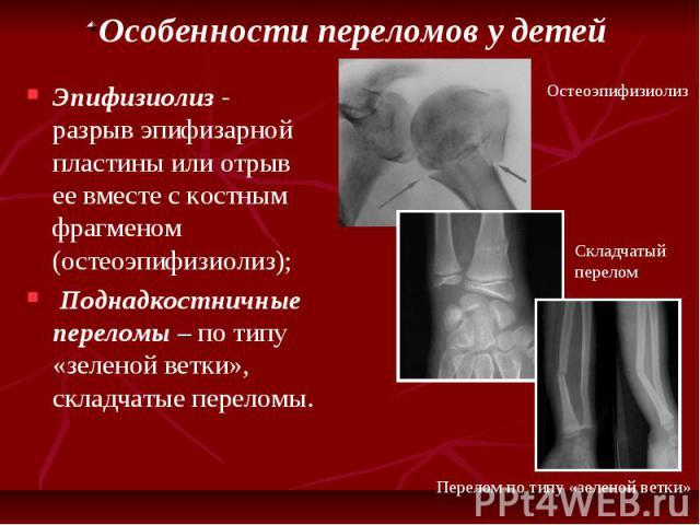 Особенности переломов у детей Эпифизиолиз - разрыв эпифизарной пластины или отрыв ее вместе с костным фрагменом (остеоэпифизиолиз); Поднадкостничные переломы – по типу «зеленой ветки», складчатые переломы.
