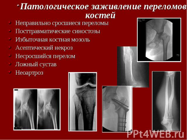 Скачать историю болезни ложный сустав пластырь тяньхэ гутун тегао перф суставной восстанавливающий 1/10 отзывы