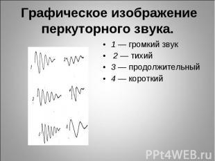 1 — громкий звук 1 — громкий звук 2 — тихий 3 — продолжительный 4 — короткий