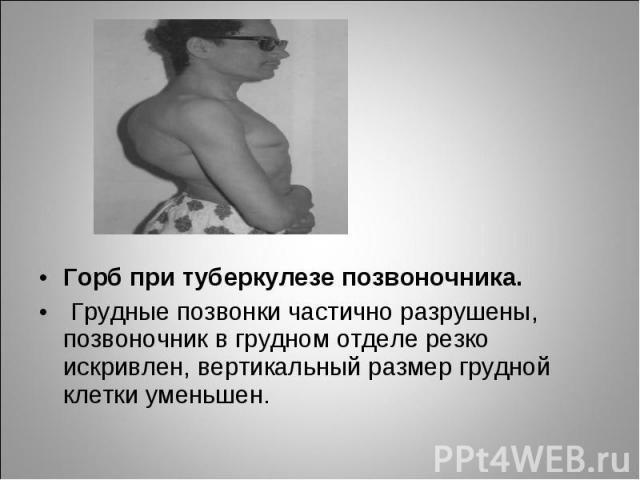 Горб при туберкулезе позвоночника. Горб при туберкулезе позвоночника. Грудные позвонки частично разрушены, позвоночник в грудном отделе резко искривлен, вертикальный размер грудной клетки уменьшен.