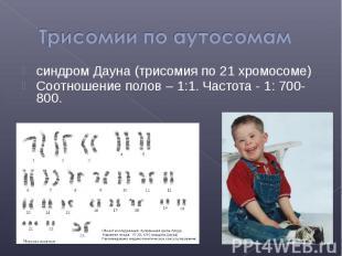синдром Дауна (трисомия по 21 хромосоме) синдром Дауна (трисомия по 21 хромосоме