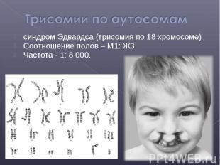 синдром Эдвардса (трисомия по 18 хромосоме) синдром Эдвардса (трисомия по 18 хро