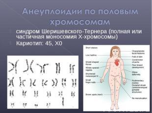 синдром Шеришевского-Тернера (полная или частичная моносомия X-хромосомы) синдро