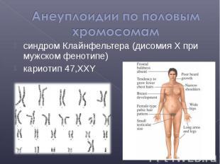 синдром Клайнфельтера (дисомия Х при мужском фенотипе) синдром Клайнфельтера (ди