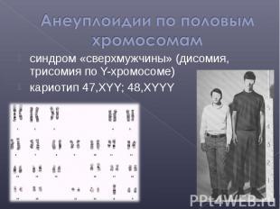 синдром «сверхмужчины» (дисомия, трисомия по Y-хромосоме) синдром «сверхмужчины»