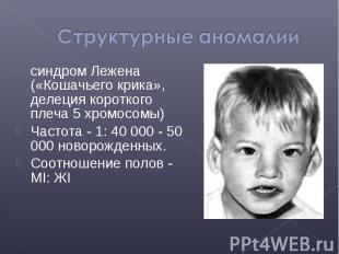 синдром Лежена («Кошачьего крика», делеция короткого плеча 5 хромосомы) синдром