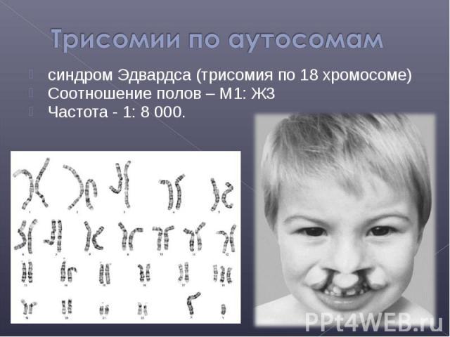 синдром Эдвардса (трисомия по 18 хромосоме) синдром Эдвардса (трисомия по 18 хромосоме) Соотношение полов – М1: Ж3 Частота - 1: 8 000.