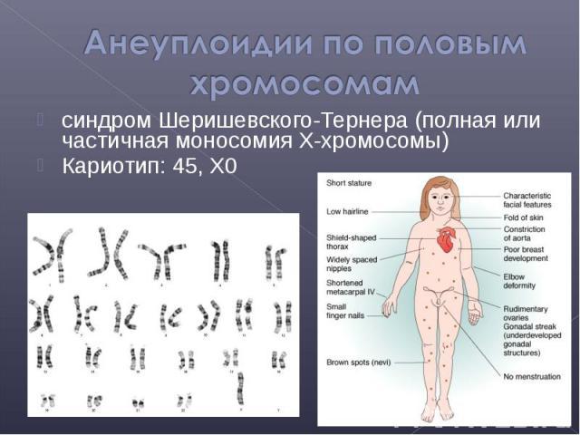 синдром Шеришевского-Тернера (полная или частичная моносомия X-хромосомы) синдром Шеришевского-Тернера (полная или частичная моносомия X-хромосомы) Кариотип: 45, X0