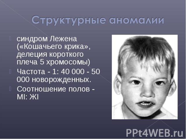 синдром Лежена («Кошачьего крика», делеция короткого плеча 5 хромосомы) синдром Лежена («Кошачьего крика», делеция короткого плеча 5 хромосомы) Частота - 1: 40 000 - 50 000 новорожденных. Соотношение полов - МI: ЖI