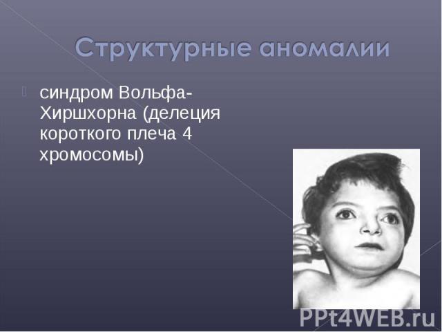 синдром Вольфа-Хиршхорна (делеция короткого плеча 4 хромосомы) синдром Вольфа-Хиршхорна (делеция короткого плеча 4 хромосомы)