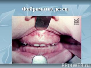 Фиброматоз десен.