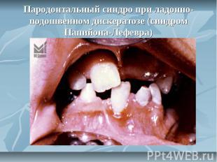 Пародонтальный синдро при ладонно-подошвенном дискератозе (синдром Папийона-Лефе