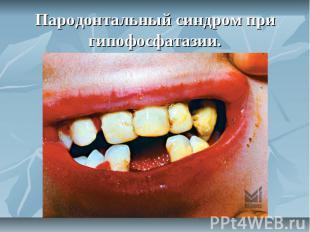 Пародонтальный синдром при гипофосфатазии.