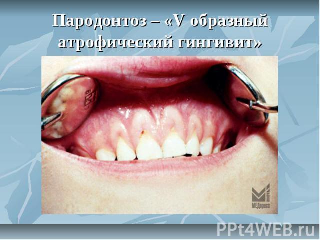 Пародонтоз – «V образный атрофический гингивит»