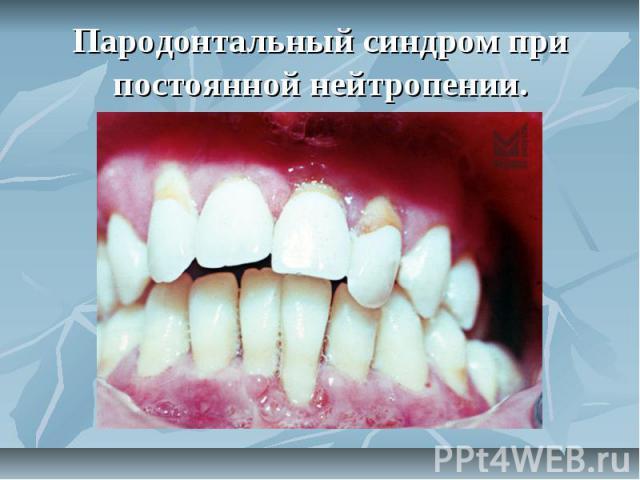 Пародонтальный синдром при постоянной нейтропении.