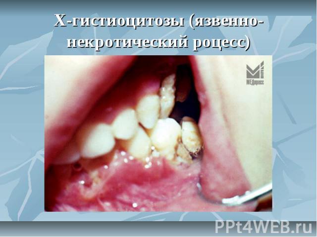 Х-гистиоцитозы (язвенно-некротический роцесс)
