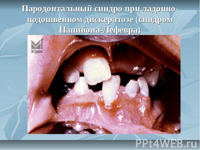 Пародонтальный синдро при ладонно-подошвенном дискератозе (синдром Папийона-Лефевра)