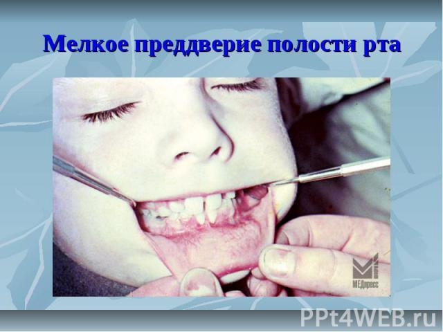 Мелкое преддверие полости рта