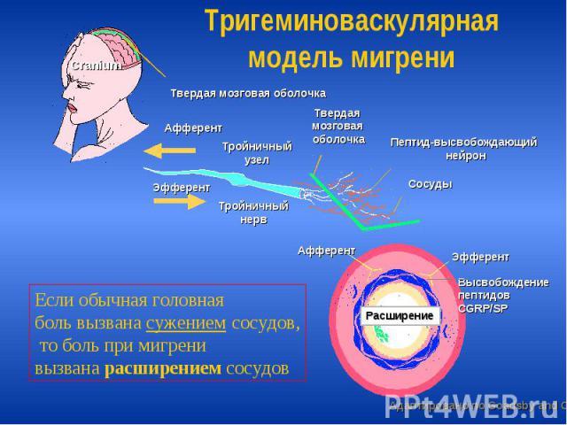 Тригеминоваскулярная модель мигрени