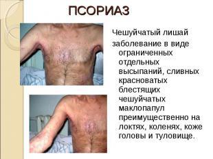 Чешуйчатый лишай Чешуйчатый лишай заболевание в виде ограниченных отдельных высы