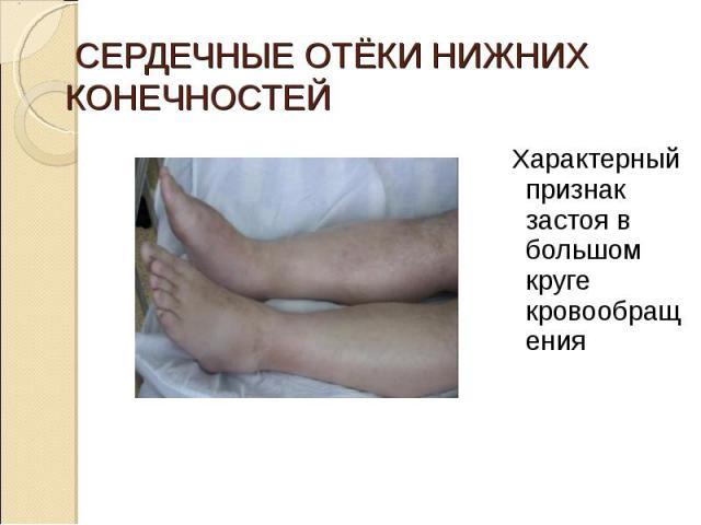 Характерный признак застоя в большом круге кровообращения Характерный признак застоя в большом круге кровообращения