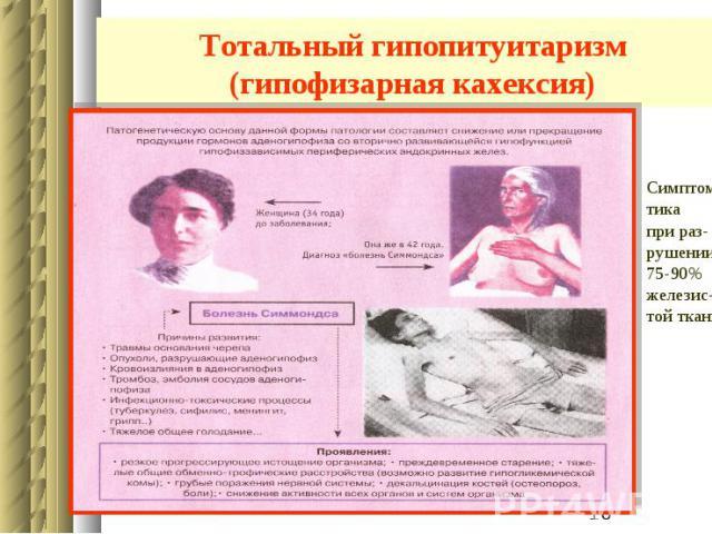 Тотальный гипопитуитаризм (гипофизарная кахексия)