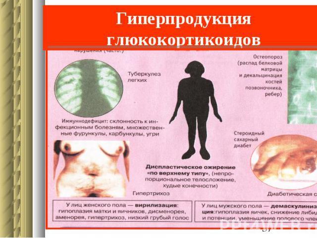 Гиперпродукция глюкокортикоидов