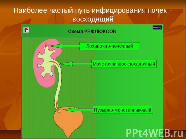 Наиболее частый путь инфицирования почек – восходящий