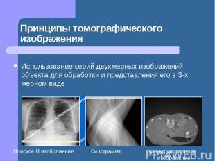 Принципы томографического изображения Использование серий двухмерных изображений