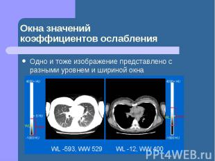 Окна значений коэффициентов ослабления Одно и тоже изображение представлено с ра