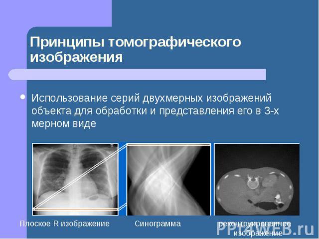 Принципы томографического изображения Использование серий двухмерных изображений объекта для обработки и представления его в 3-х мерном виде