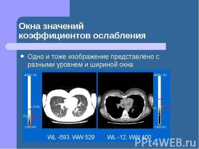 Окна значений коэффициентов ослабления Одно и тоже изображение представлено с разными уровнем и шириной окна