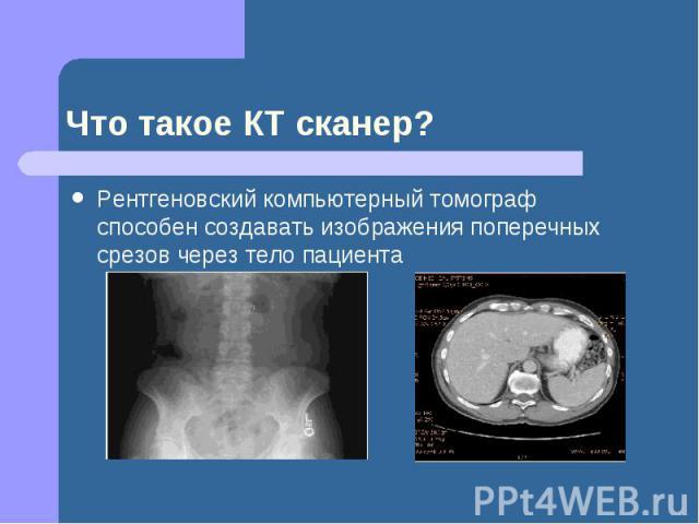Что такое КТ сканер? Рентгеновский компьютерный томограф способен создавать изображения поперечных срезов через тело пациента
