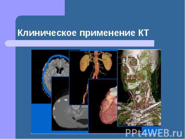 Клиническое применение КТ
