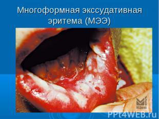 Многоформная экссудативная эритема (МЭЭ)