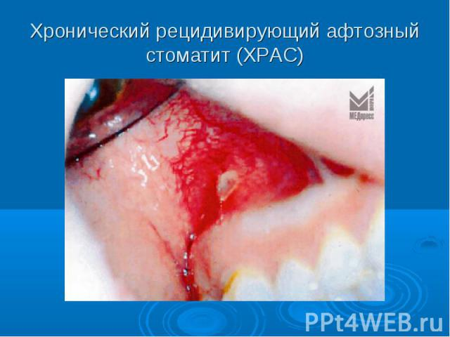 Хронический рецидивирующий афтозный стоматит (ХРАС)