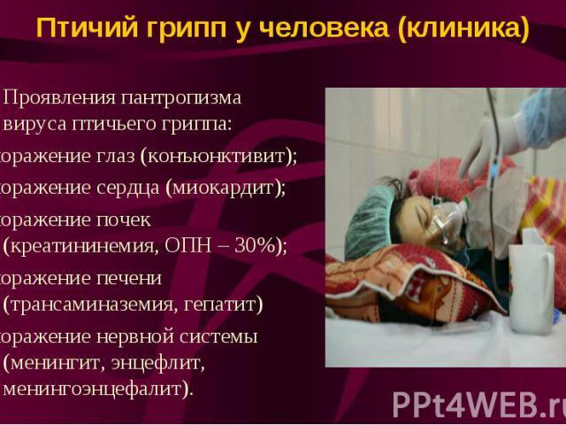 Птичий грипп у человека (клиника) Проявления пантропизма вируса птичьего гриппа: -поражение глаз (конъюнктивит); -поражение сердца (миокардит); -поражение почек (креатининемия, ОПН – 30%); -поражение печени (трансаминаземия, гепатит) -поражение нерв…