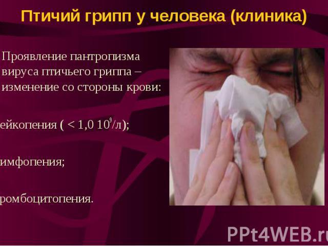 Птичий грипп у человека (клиника) Проявление пантропизма вируса птичьего гриппа – изменение со стороны крови: -лейкопения ( < 1,0 109/л); -лимфопения; -тромбоцитопения.