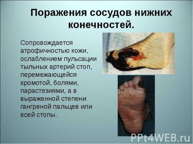 Сопровождается атрофичностью кожи, ослаблением пульсации тыльных артерий стоп, перемежающейся хромотой, болями, парастезиями, а в выраженной степени гангреной пальцев или всей стопы. Сопровождается атрофичностью кожи, ослаблением пульсации тыльных а…
