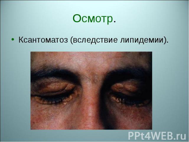 Ксантоматоз (вследствие липидемии). Ксантоматоз (вследствие липидемии).