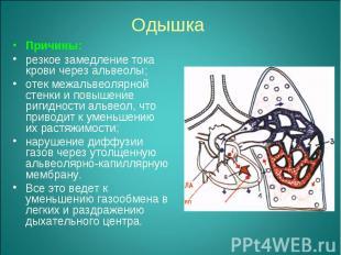 Причины: Причины: резкое замедление тока крови через альвеолы; отек межальвеоляр