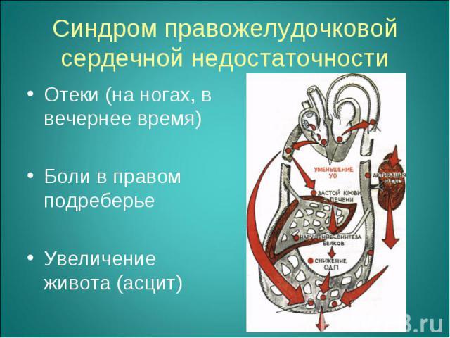 Отеки (на ногах, в вечернее время) Отеки (на ногах, в вечернее время) Боли в правом подреберье Увеличение живота (асцит)