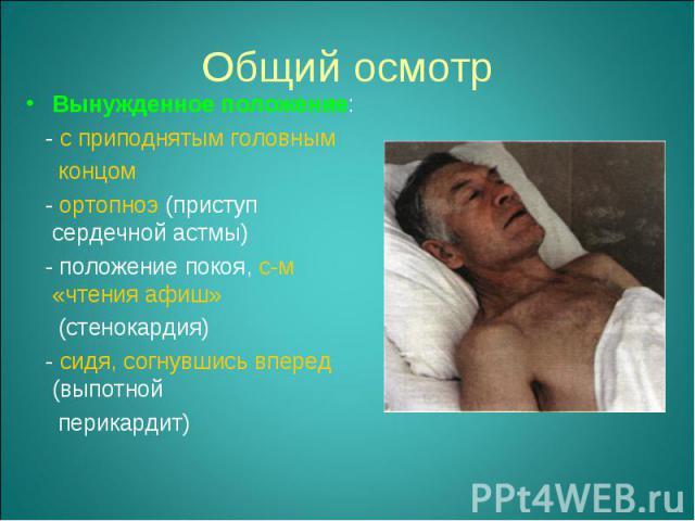 Вынужденное положение: Вынужденное положение: - с приподнятым головным концом - ортопноэ (приступ сердечной астмы) - положение покоя, с-м «чтения афиш» (стенокардия) - сидя, согнувшись вперед (выпотной перикардит)